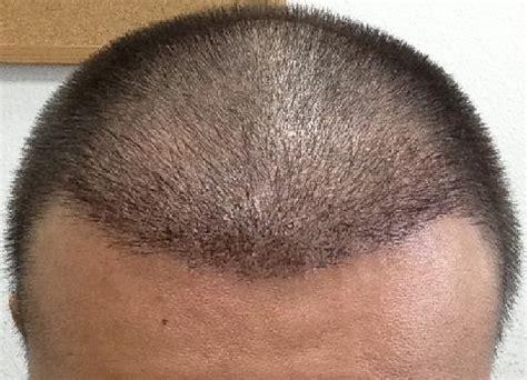 r 233 sultat d une greffe de cheveux fue safe system et avis