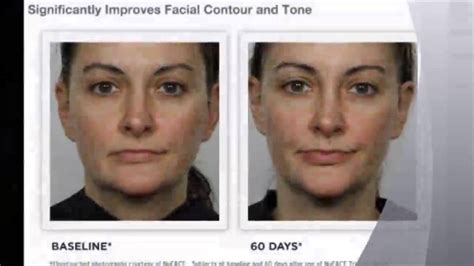 Nuface Trinity Facial Toning Device White color - YouTube