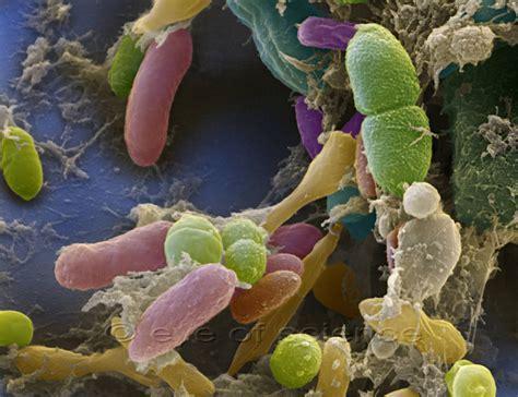 raster elektronen mikroskop rem aufnahme verschiedene