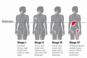 Hodgkin Lymphoma Staging