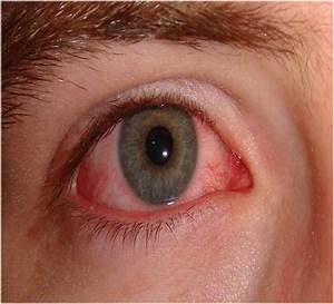 Why Weed Gives you Red Eyes and How to Get Rid of It
