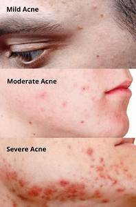 A One-Stop Blog on Acne - why we get it and what can be ...
