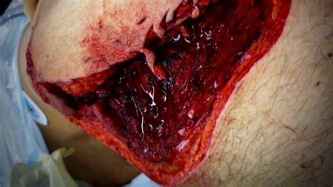Shark Bites Surfer's Leg | Shark Week | Discovery