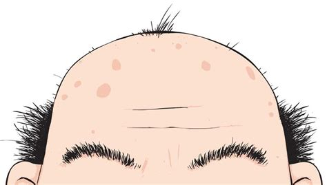 Going Bald Isn't Your Mother's Fault; Maternal Genetics