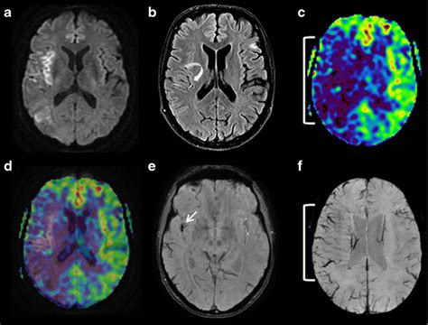 Asl And Susceptibility-weighted Imaging Contribution To