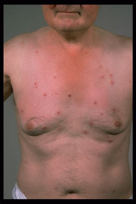 Viral Shedding Herpes Zoster by Herpes Or Hiv Disseminated Herpes Simplex Wiki