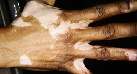 vitiligo symptome apotheken umschau