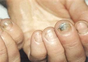 Грибок ногтей на руках после гель лака