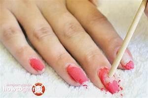 Фото лечения грибка ногтя запущенная форма