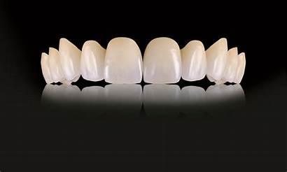Dental Crowns Ips Arts Oral Emax Laboratories
