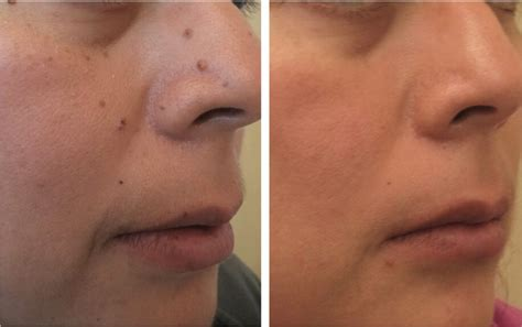 Laser Removal of Age Spots and Freckles Treatment
