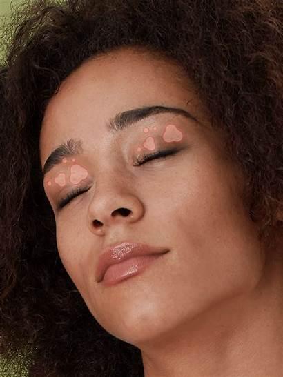 Eyelids Dry Eczema Eyelid Around Rash Swollen
