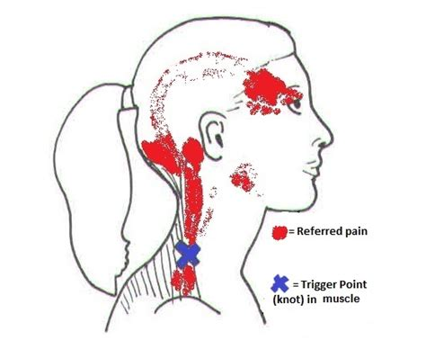 Spineplus.co.uk | Trigger Points & Trigger Point Dry