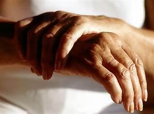 Лекарство от артрита суставов пальцев рук