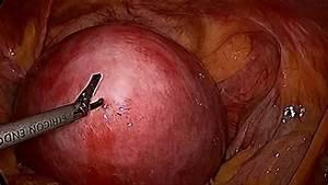 Laparoscopic Fibroid Removal