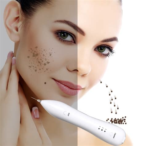 laser electric ion beauty mole removal painless sweep