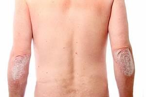 Eczema vs Psoriasis - Damoras.com