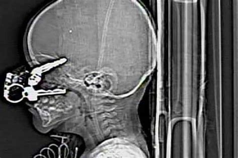 10 Incredible X-rays That You Won't Believe Are Real