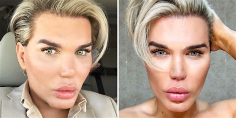 eye color changing surgery human ken doll to get his eye color changed despite the