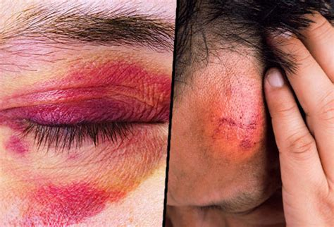 what causes different skin colors bruises causes colors and treatments