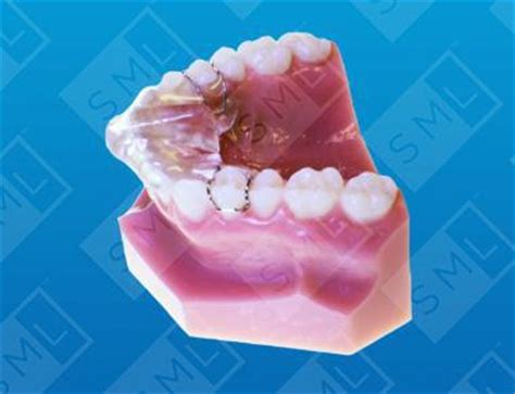 sved deprogrammer bite maintenance dentist lab