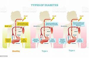 Types Of Diabetes Vector Illustration Diagram Scheme Stock