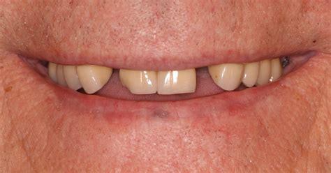 oral surgery  montrose  oral