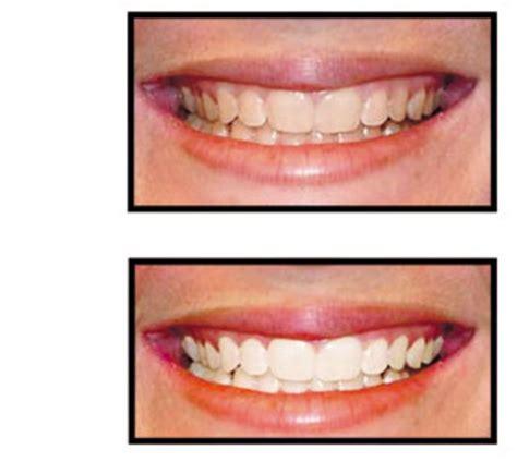 bureau en gros rosemere simply white smile rosemère qc ourbis