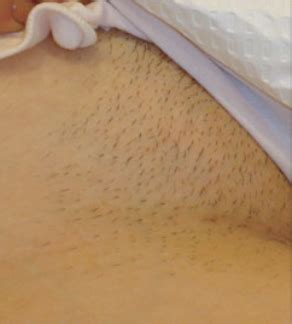 Bikini Line Hair Removal treatment in Norwich | The