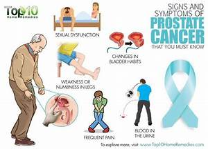 Signs and Symptoms of Prostate Cancer | Top 10 Home Remedies
