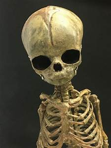 Cast Replica Human Fetal Skeleton 15 U0026quot
