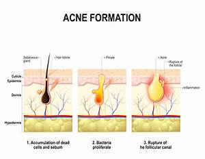 Acne And Acne Scarring Treatment Phoenix