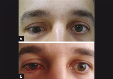 Orbital Floor Fracture Symptoms by Management Of Diplopia In Patients With Blowout Fractures