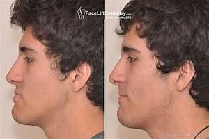 Underbite Surgery Alternative in Two Weeks