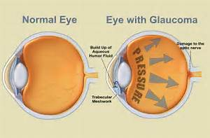 VISIQUE KAPITI EYECARE: July is Glaucoma Awareness Month Glaucoma