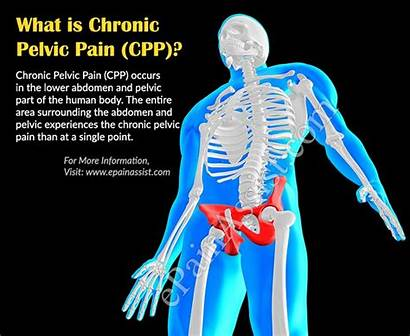 Pelvic Pain Chronic Symptoms Cpp Etiology During
