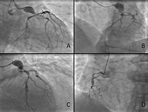Figure Shows Giant Aneurysm Of Left Main Coronary Artery