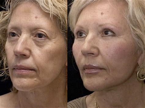 dr mark berman cosmetic surgeon  breast augmentation