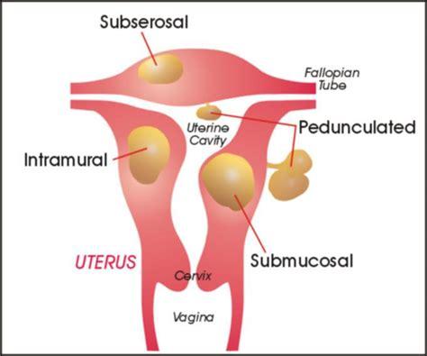 Gambar Rahim Wanita What Are Pedunculated Fibroid Tumors Uterine Fibroids