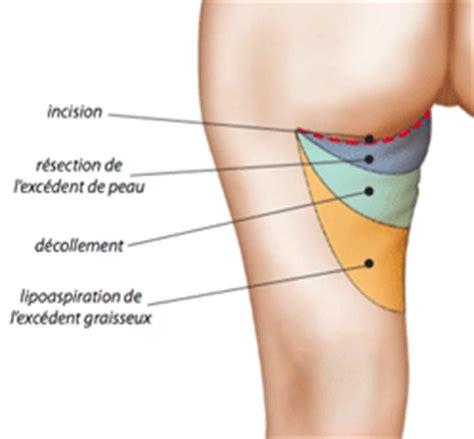 douleur a l interieur de la cuisse 28 images exercice pour muscler les cuisses fitness vid