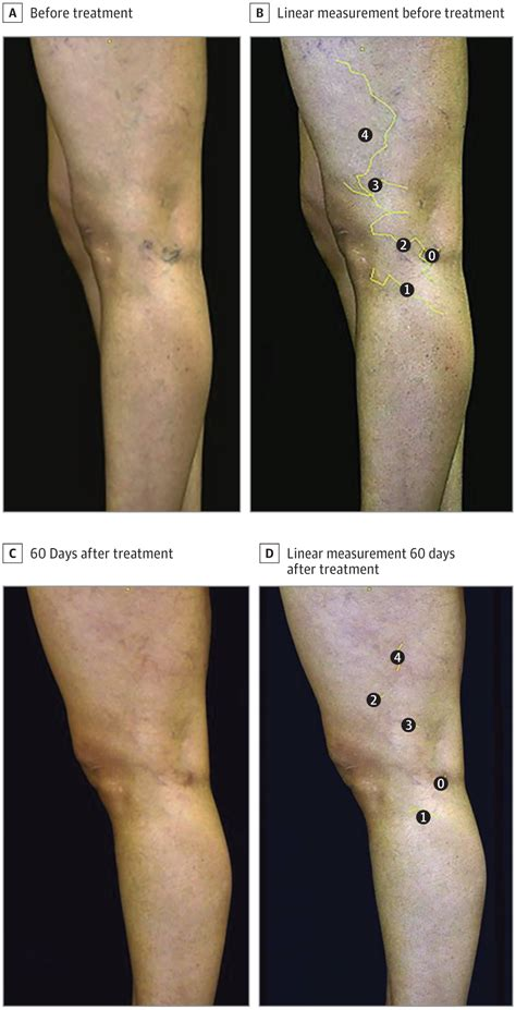 sclerotherapy  reticular veins    limbs