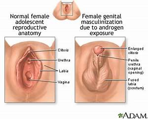 """4 načina da izbjegnete vaginalne """"vjetrove"""" — seks"""