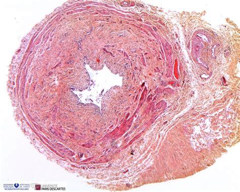 ureteropelvic junction obstruction humpathcom human pathology