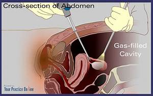 Laparoscopy  Causes  Symptoms  Treatment Laparoscopy