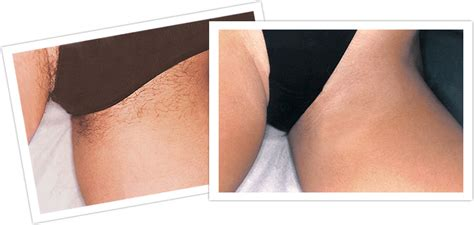 laser treatments ukhair removal   laser