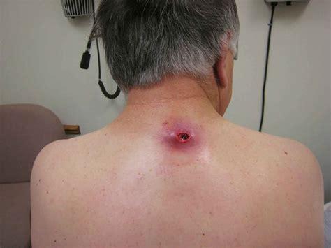 Sebaceous Cyst Type Causes Diagnosis Treatment