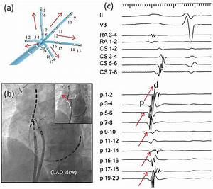 Figure3  A  The Pentaray  U00ae Catheter  This Image Is