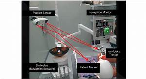 This Dental Implant Navigation System Is Composed Of 3