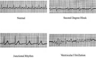 Normal and Abnormal EKG