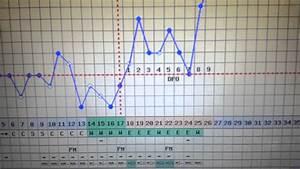Ttc-bbt Chart Cd 26- 3  9 Dpo